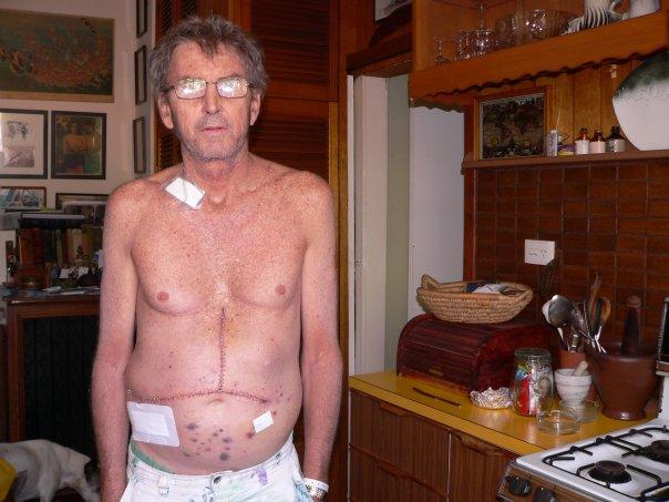Uncle Rod, dopo il trapianto di fegato. (archivio della moglie di Uncle Rod)